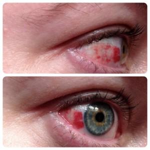In my eye!